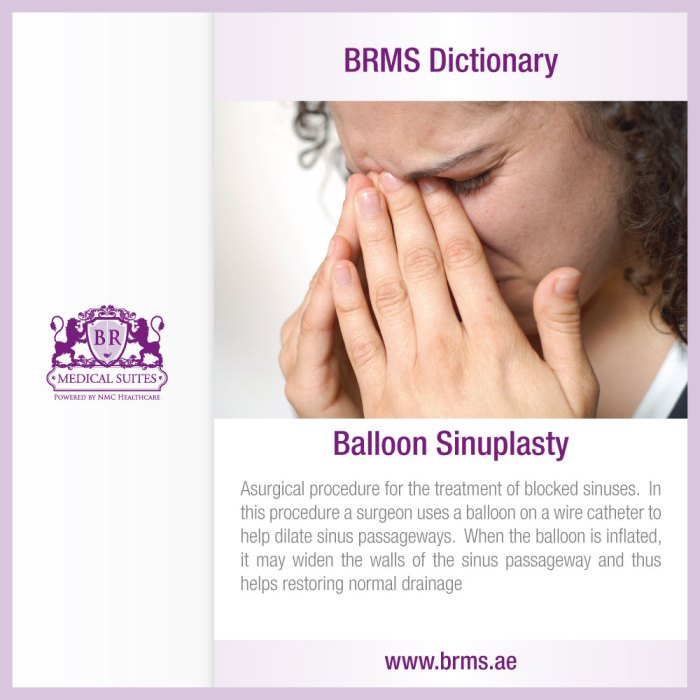 BRMS Dictionary – Balloon Sinuplasty